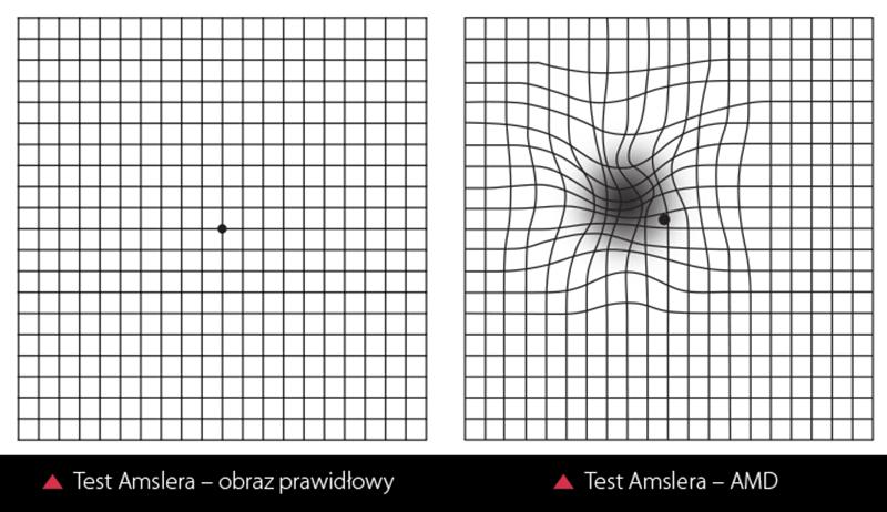 Бесплатная проверка зрения онлайн: таблицы сивцева, орловой, амслера