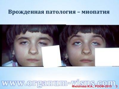 Миопатия и астигматизм — все о проблемах с глазами