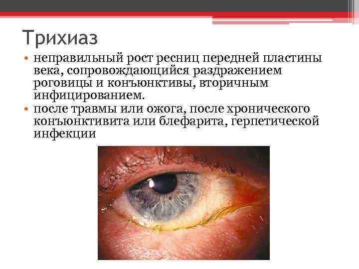 Трихиаз век глаза