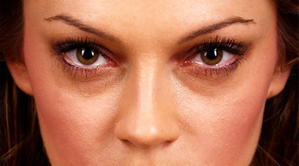 Желтые круги под глазами | причины и лечение желтых кругов под глазами | компетентно о здоровье на ilive
