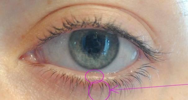 Трихиаз  - симптомы болезни, профилактика и лечение трихиаза, причины заболевания и его диагностика на eurolab