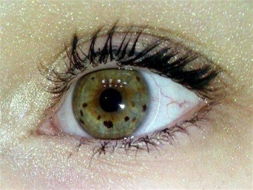Темное пятно в глазу: возможные причины. рекомендации медиков