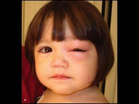 Чирей на веке глаза: фото, методы лечения фурункула
