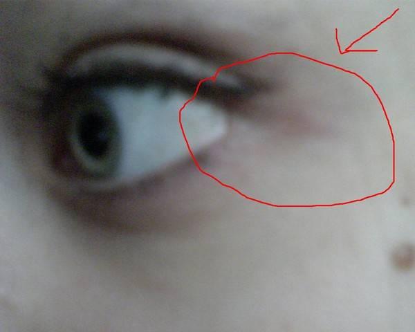 Пять возможных причин синяков под глазами
