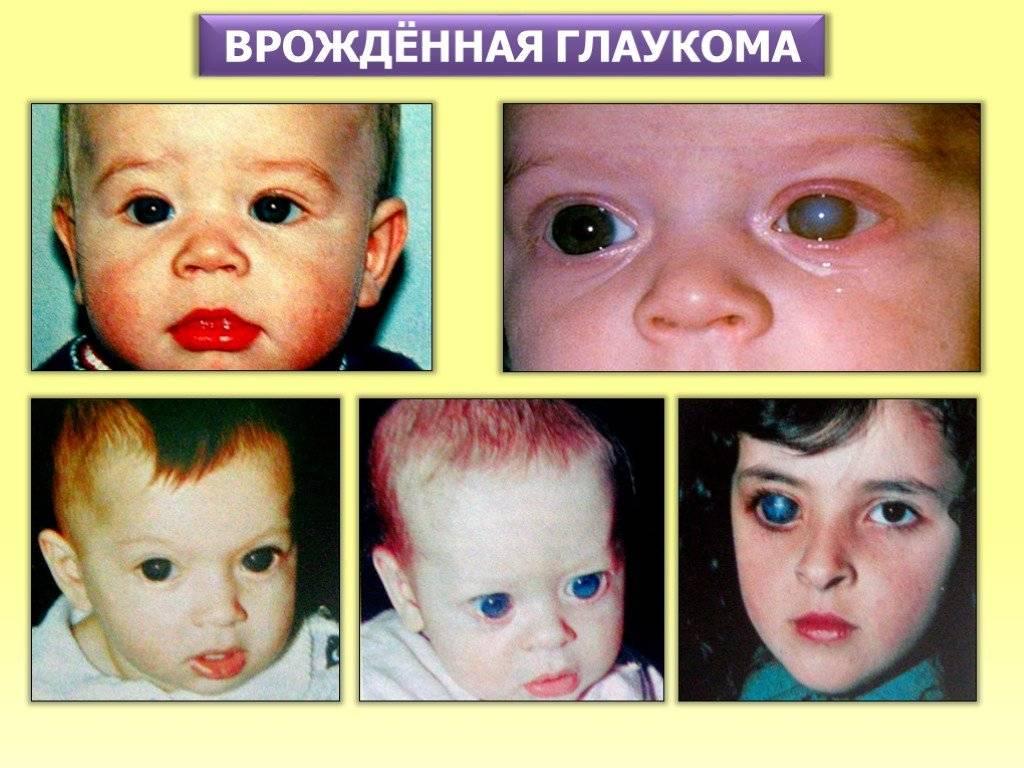 Врождённая глаукома: причины болезни у детей, лечение, прогноз oculistic.ru врождённая глаукома: причины болезни у детей, лечение, прогноз