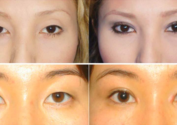 Кантопластика: что это такое, фото до и после, описание медиальной, латеральной и других операций, в том числе по созданию миндалевидной формы глаз
