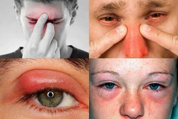 Почему краснеют глаза при простуде и орви