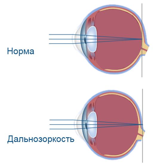 Возрастная дальнозоркость: лазерная коррекция и лечение, старческая гимнастика для глаз, как лечить