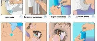 Как вытащить линзу из глаза: методы, что запрещено делать