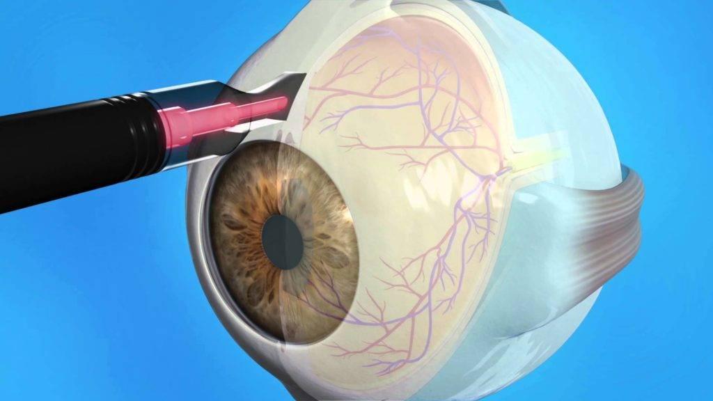 Селективная лазерная трабекулопластика (слт)