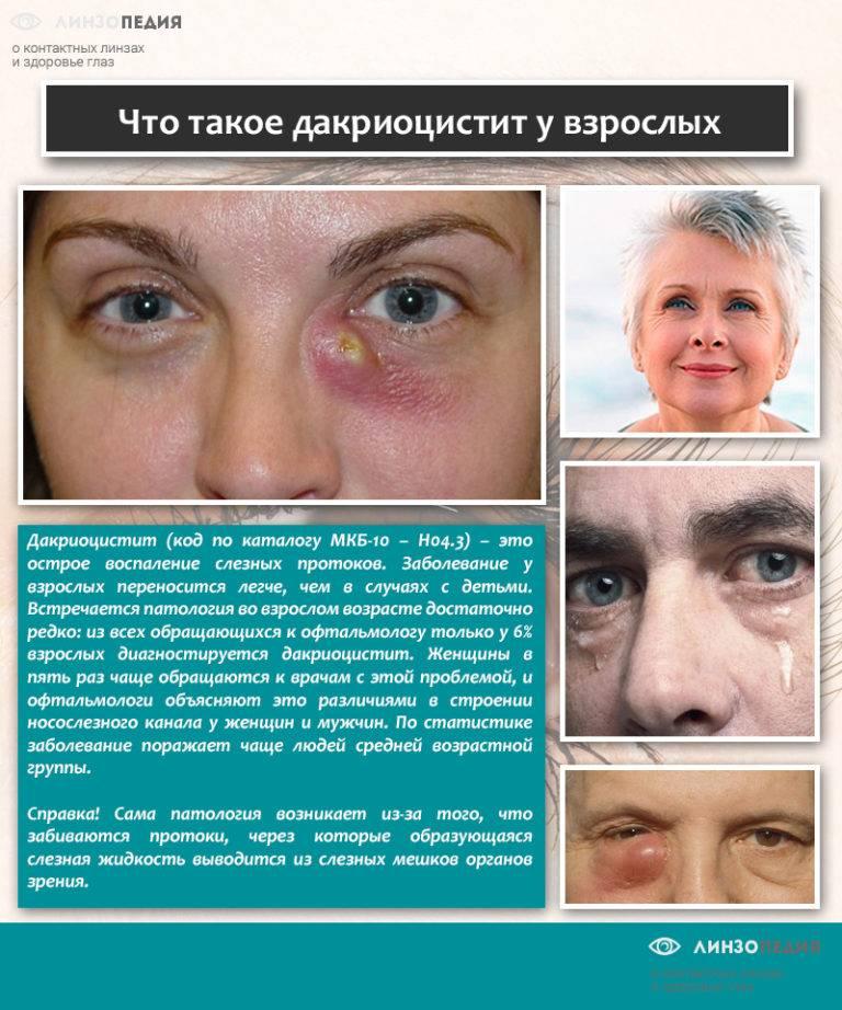 Дакриоцистит у взрослых - симптомы воспаления слезного канала, лечение закупорки протока, массаж при хроническом