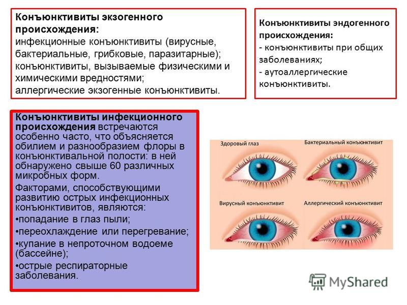 Инфекционные болезни глаз у человека