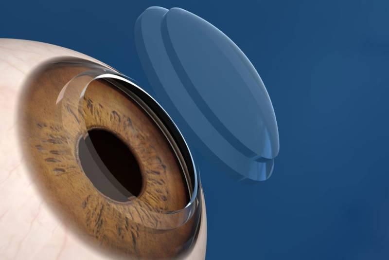 Склеральные линзы - что это такое, применение медицинских и декортативных оптических изделий, срок ношения, использование при кератоконусе