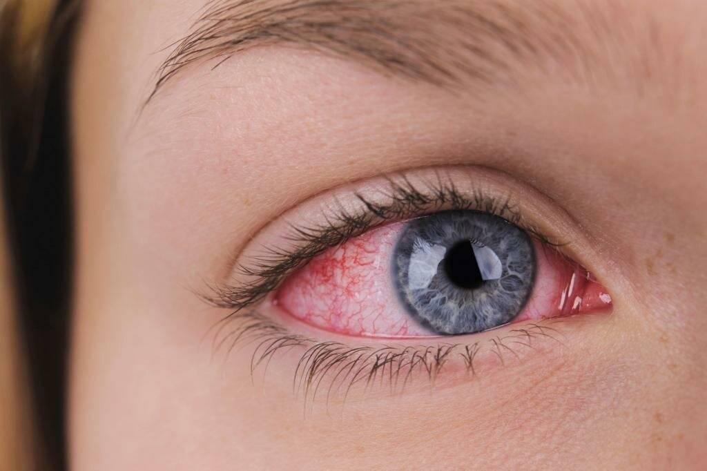 8 лучших глазных капель при работе за компьютером