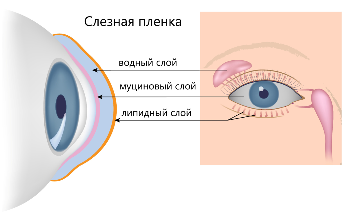 Пленка на глазу у человека что это такое фото симптомы и лечение