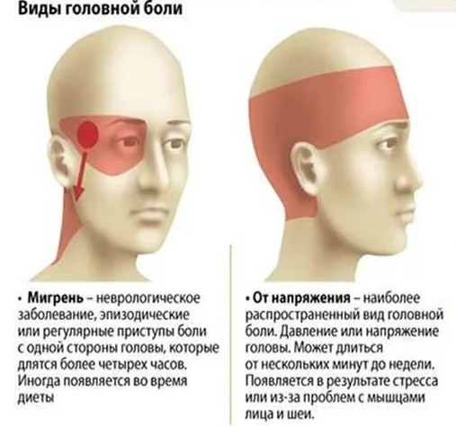 Болит голова с одной стороны: 11 основных причин развития недуга