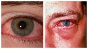 Ожог глаза: виды, степени, симптомы и лечение
