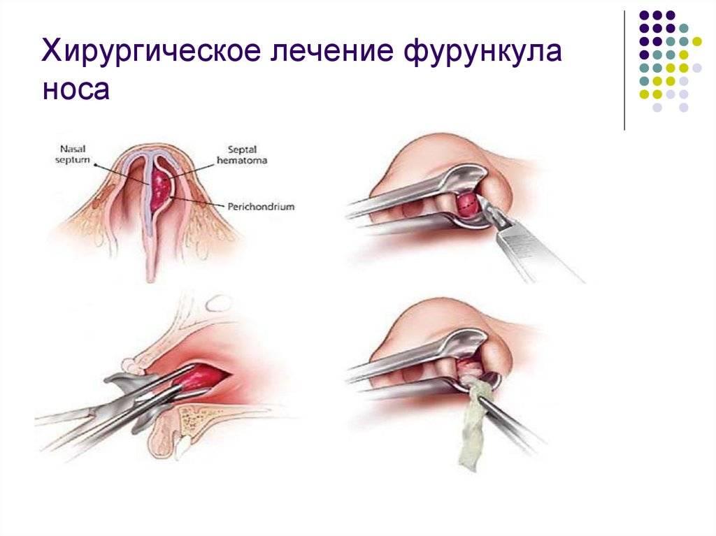 Фурункул на глазу у ребенка или взрослого - причины появления и стадии развития, методы лечения, профилактика