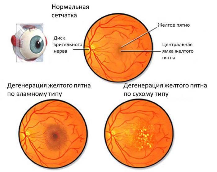 Решетчатая дистрофия сетчатки: влияние на око и причины появления