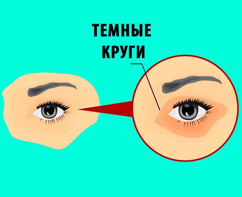 Синюшность под глазами причины. причины синяков под глазами