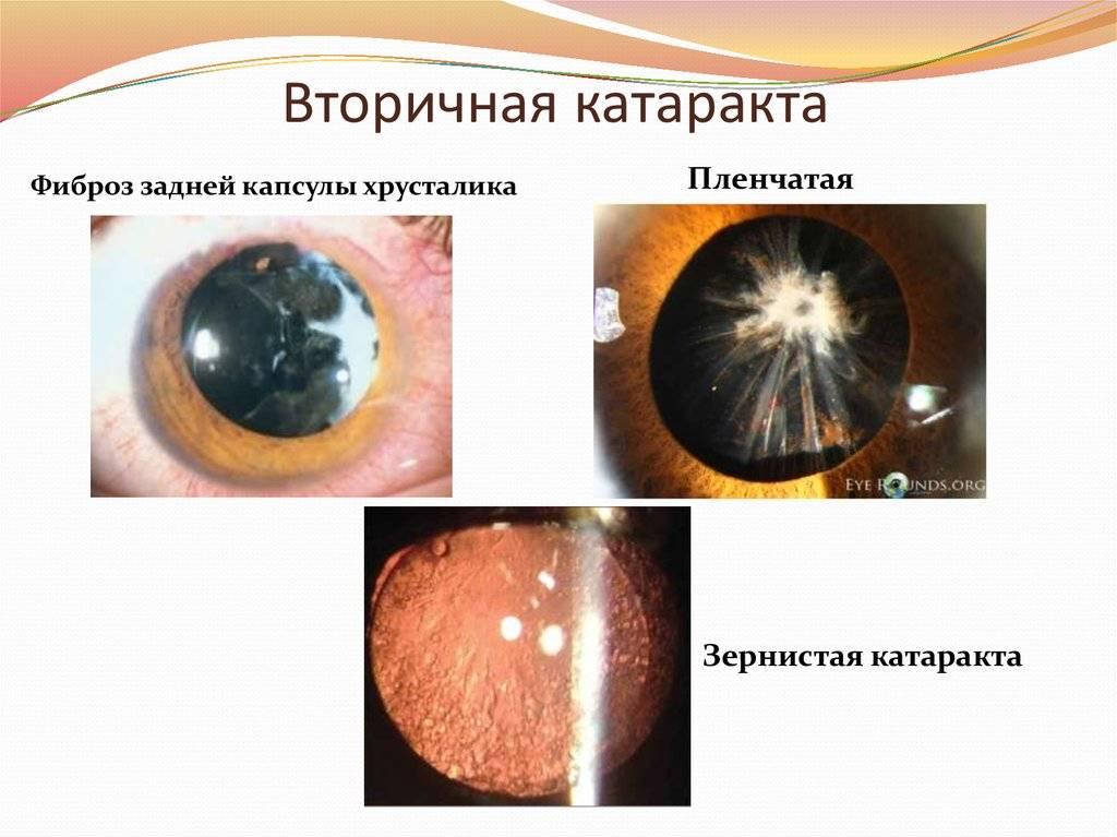 Вторичная катаракта после замены хрусталика: причины, лечение oculistic.ru вторичная катаракта после замены хрусталика: причины, лечение