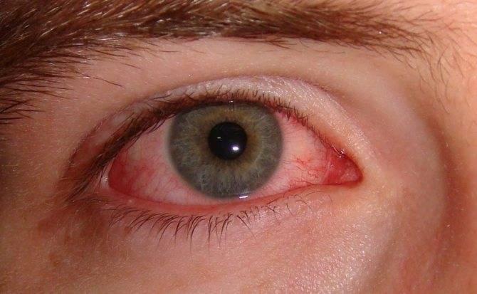 Конъюктивит: причины, симптомы, диагностика и лечение