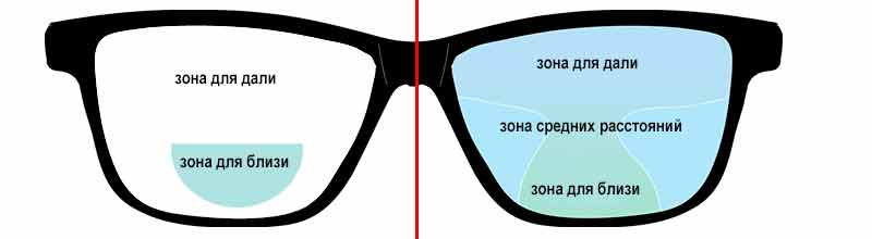 Прогрессивные очки — плюсы и минусы