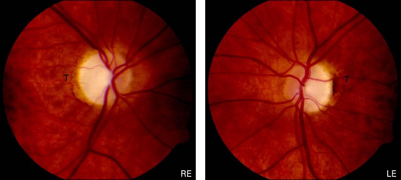 Противопоказания при атрофии зрительного нерва