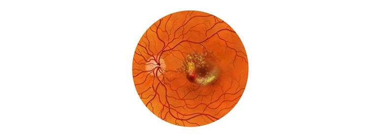 Дистрофические заболевания сетчатки