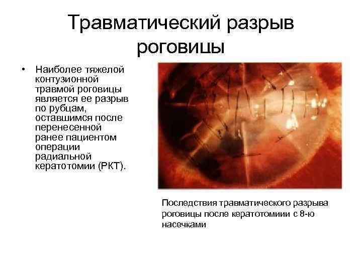 Кератотомия - показания, виды, последствия операции