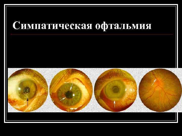 Симпатическая офтальмия: причины, лечение