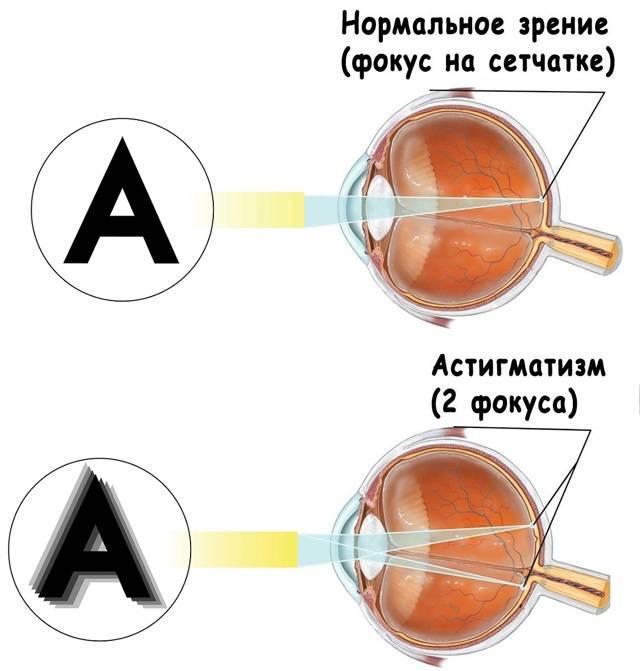 Сложный гиперметропический астигматизм: описание симптомов, способов диагностики и лечения — глаза эксперт