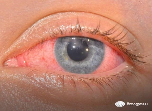 Ощущение пленки на глазу - что это, причины и лечение