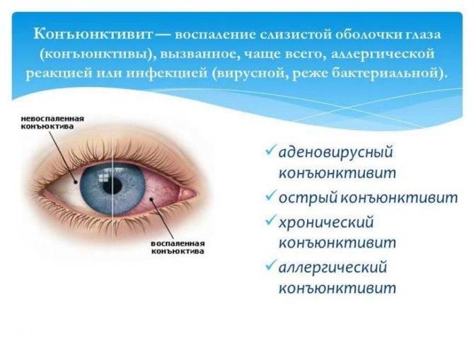 Почему у ребенка гноятся глаза?