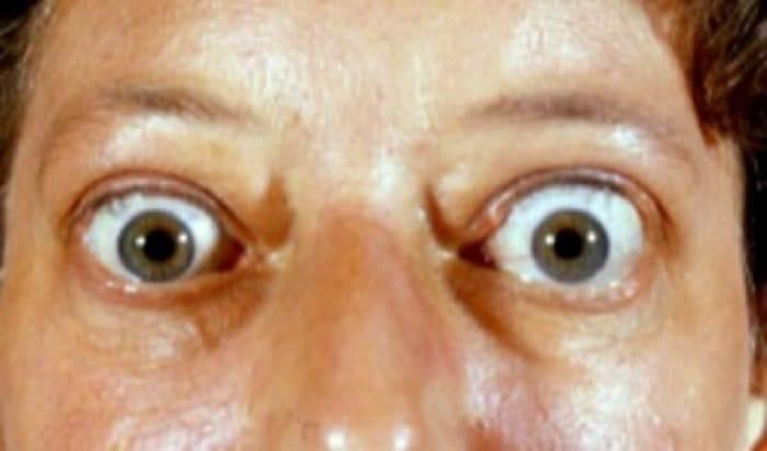 Отечный экзофтальм (болезнь грэйвса)