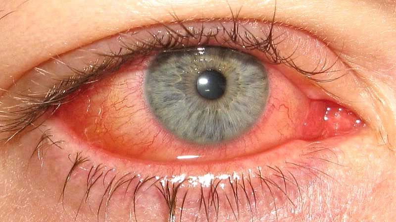 Продуло глаз: симптомы, особенности лечения