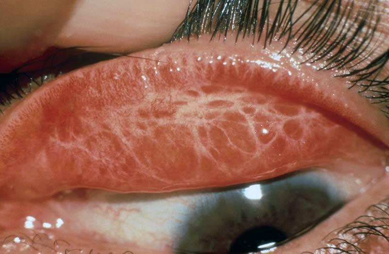 Как лечить скотому глаза и возможно ли сохранить зрение?