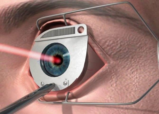Отслоение сетчатки глаза: операция для восстановления зрения