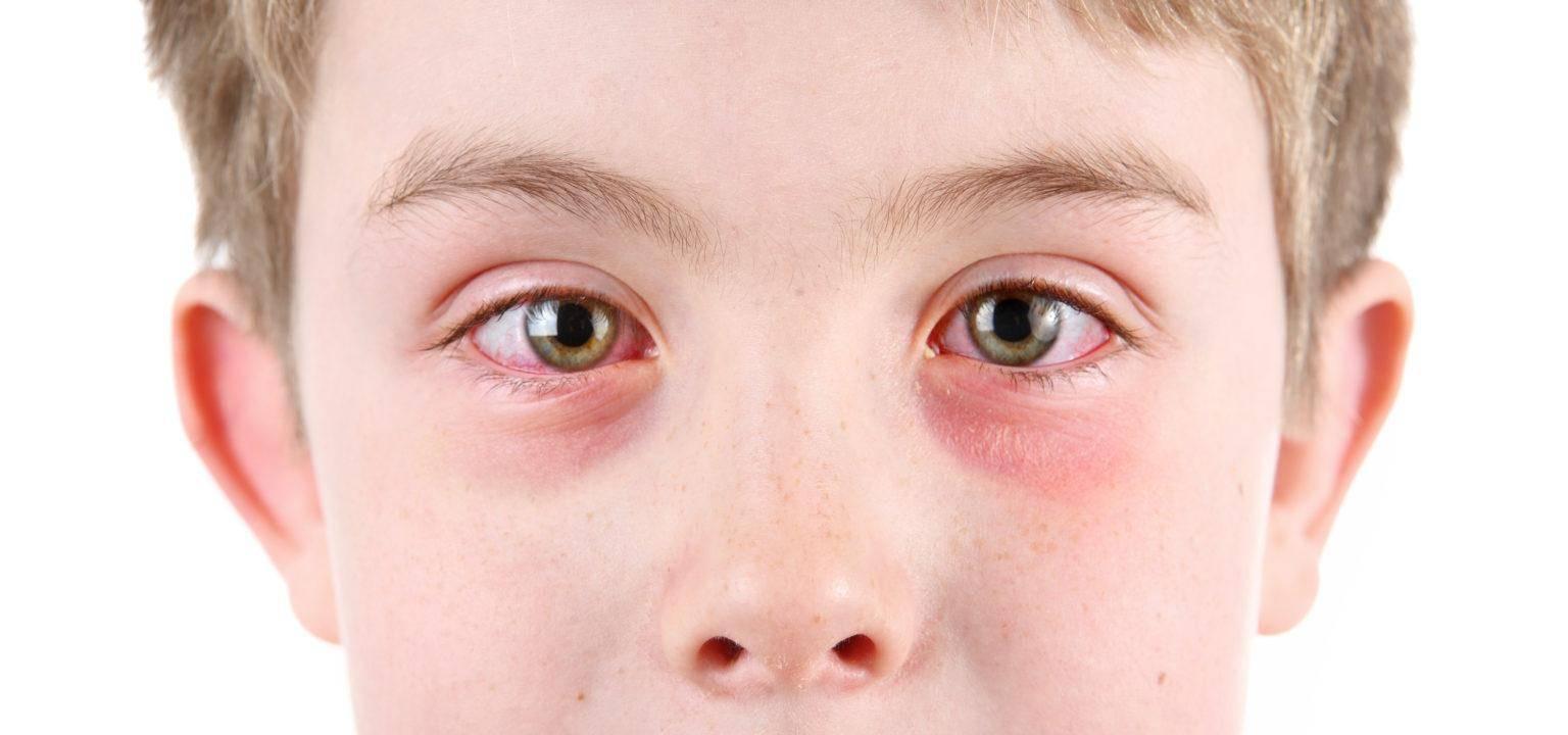 Темные круги под глазами: причины и способы как их быстро убрать в домашних условиях