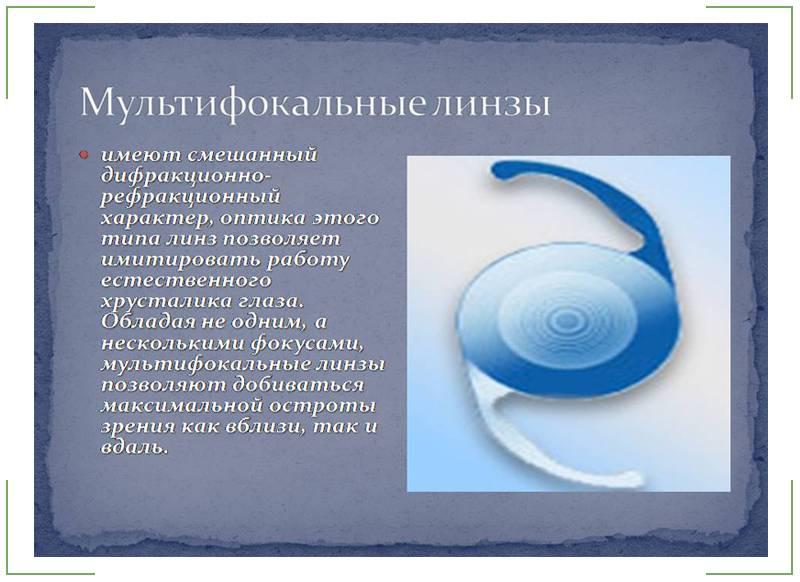 Правила подбора и ношения мультифокальных линз