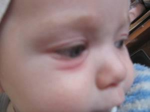 Опухло нижнее веко: почему отекает под глазами, когда присоединяются боль при моргании, что делать