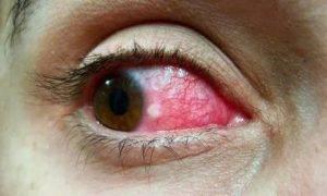 Красное пятно на глазном яблоке у взрослого