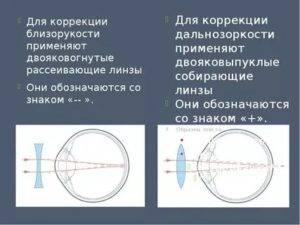 Линзы мультифокальные - отзывы про контактные при возрастной дальнозоркости