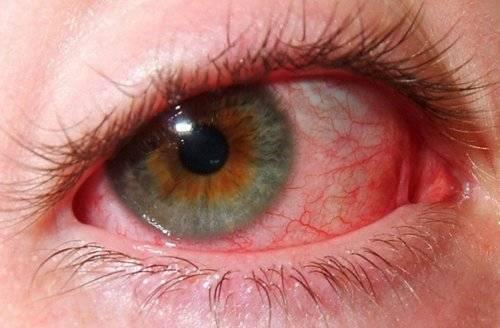 Увеит глаза: причины, виды, симптомы, диагностика и лечение
