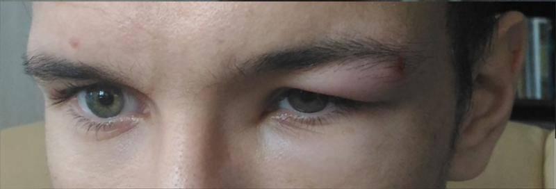 Болит бровь над глазом давление