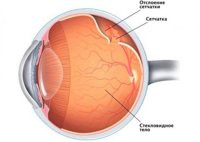 Отслоение сетчатки глаза, период после операции: что нельзя делать и основные ограничения