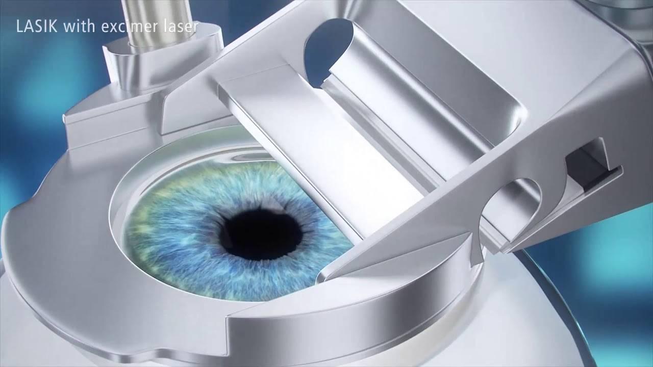 Лазерная коррекция зрения методом эпи ласик (epi lasik)