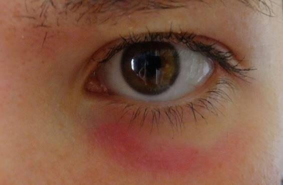 Круги под глазами у ребенка : причины и лечение   компетентно о здоровье на ilive