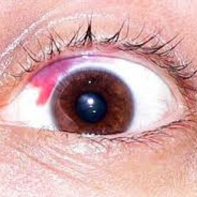 Гемофтальм глаза: причины, способы лечения и операция