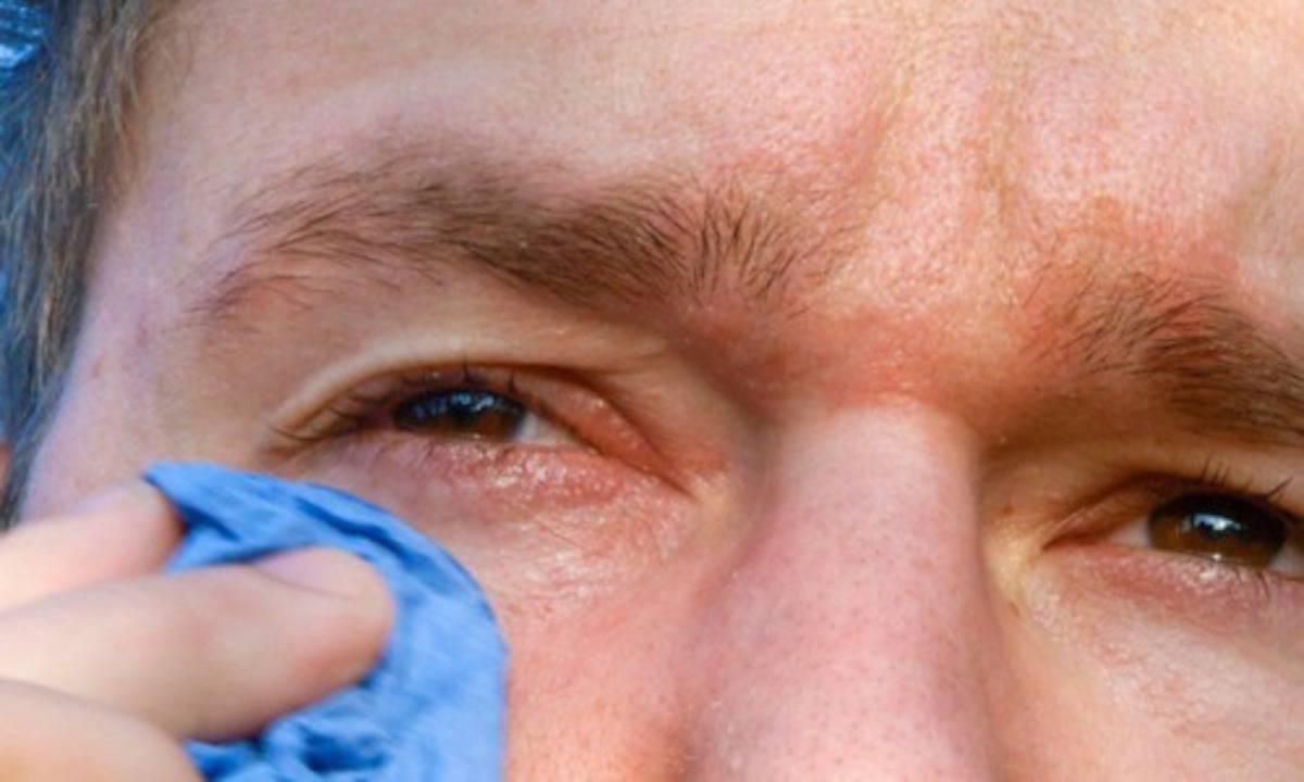 Покраснение и нагноение глаз после бани: в чем дело?